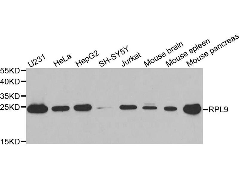 Image no. 1 for anti-Ribosomal Protein L9 (RPL9) antibody (ABIN6568093)