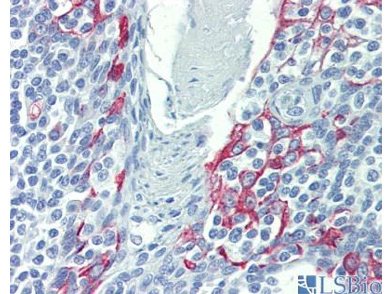 Immunohistochemistry (IHC) image for anti-LIM Domains Containing 1 (LIMD1) (N-Term) antibody (ABIN2784238)