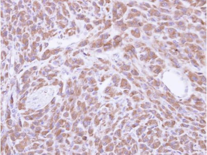 Immunohistochemistry (IHC) image for anti-Protein-L-Isoaspartate (D-Aspartate) O-Methyltransferase (PCMT1) (Center) antibody (ABIN2856765)