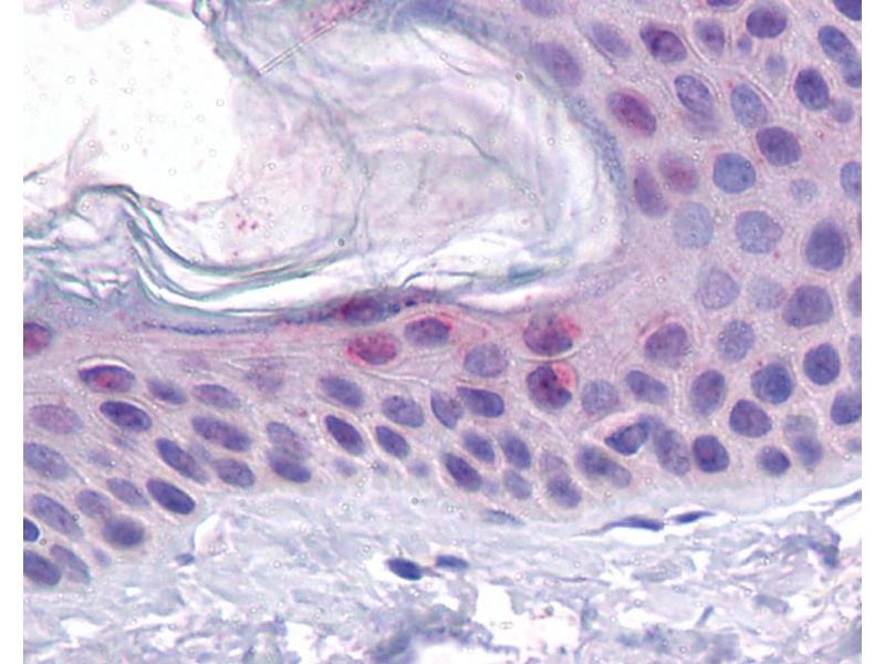 Immunohistochemistry (IHC) image for anti-Tumor Protein P53 (TP53) (N-Term) antibody (ABIN2779317)