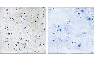 Image no. 1 for anti-TPX2, Microtubule-Associated, Homolog (Xenopus Laevis) (TPX2) antibody (ABIN1576075)