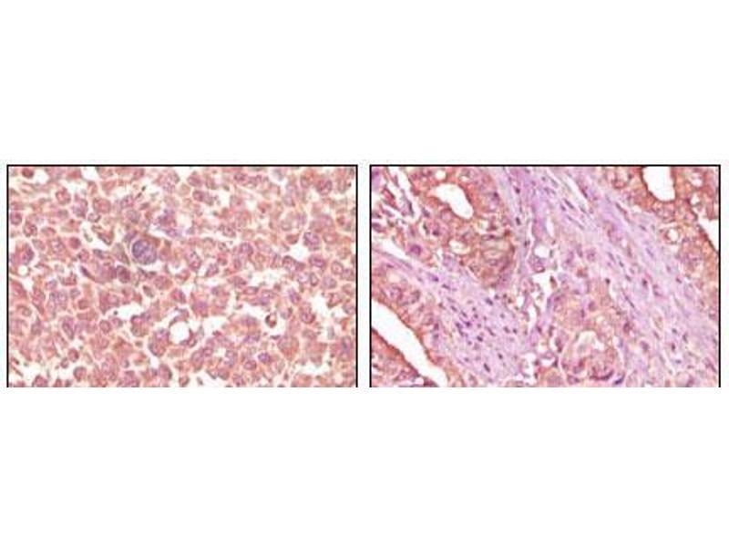 Immunohistochemistry (IHC) image for anti-EPH Receptor A2 (EPHA2) antibody (ABIN2869193)