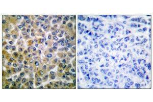 Image no. 1 for anti-SMAD, Mothers Against DPP Homolog 1 (SMAD1) (Ser465) antibody (ABIN1847896)