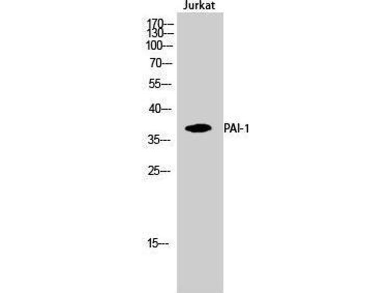 Western Blotting (WB) image for anti-SERPINE1 antibody (serpin Peptidase Inhibitor, Clade E (Nexin, Plasminogen Activator Inhibitor Type 1), Member 1) (Internal Region) (ABIN3186312)