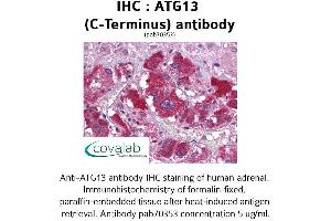 Image no. 1 for anti-Autophagy Related 13 (ATG13) (C-Term) antibody (ABIN1732013)