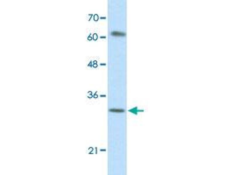 Image no. 1 for anti-AU RNA Binding Protein/enoyl-CoA Hydratase (AUH) antibody (ABIN5573207)