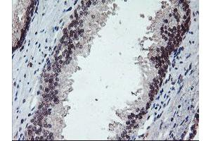 Image no. 4 for anti-Protein Phosphatase 1, Regulatory (Inhibitor) Subunit 15A (PPP1R15A) antibody (ABIN1498364)