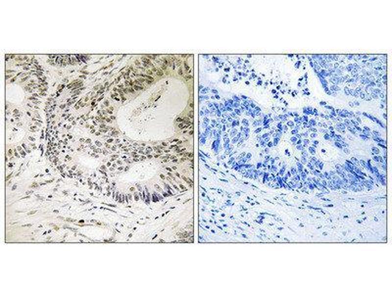 Immunohistochemistry (IHC) image for anti-Tumor Protein P53 Binding Protein 1 (TP53BP1) (pSer25) antibody (ABIN1847360)