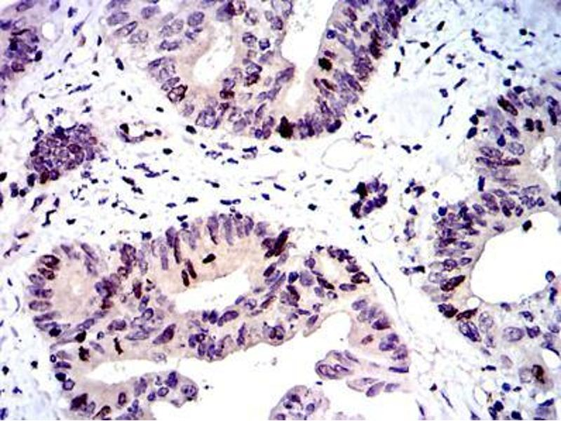 Immunohistochemistry (IHC) image for anti-BIRC5 antibody (Baculoviral IAP Repeat-Containing 5) (ABIN969504)