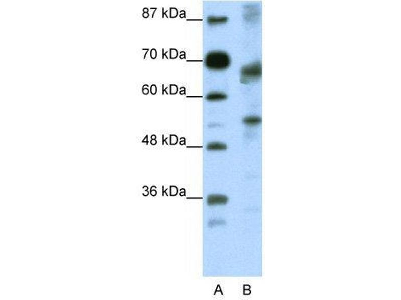 Western Blotting (WB) image for anti-Transcription Factor 12 (TCF12) (N-Term) antibody (ABIN2780487)