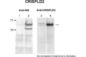Image no. 2 for anti-Cysteine-Rich Secretory Protein LCCL Domain Containing 2 (CRISPLD2) (N-Term) antibody (ABIN2784006)