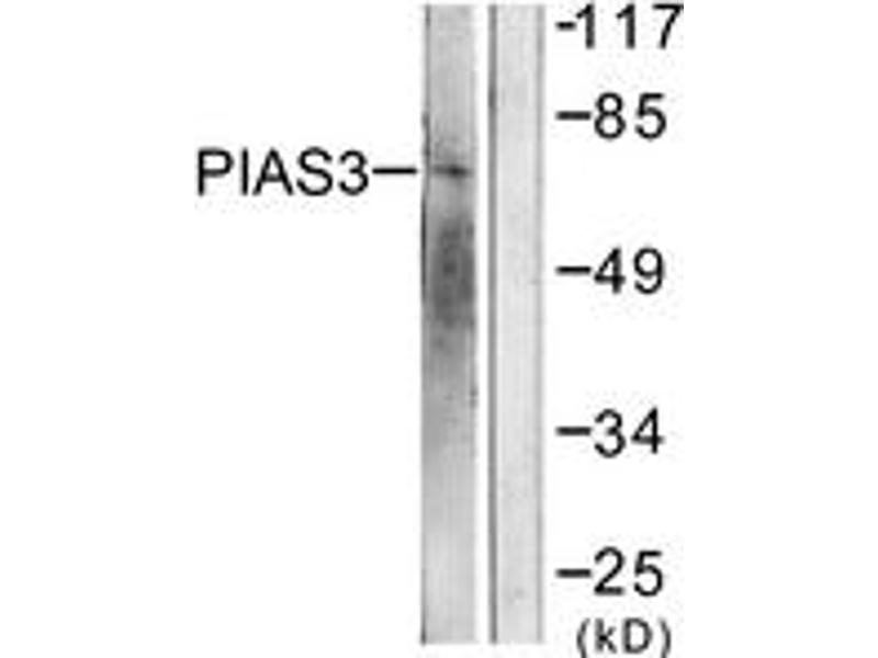 Western Blotting (WB) image for anti-PIAS3 antibody (Protein Inhibitor of Activated STAT, 3) (ABIN1533434)