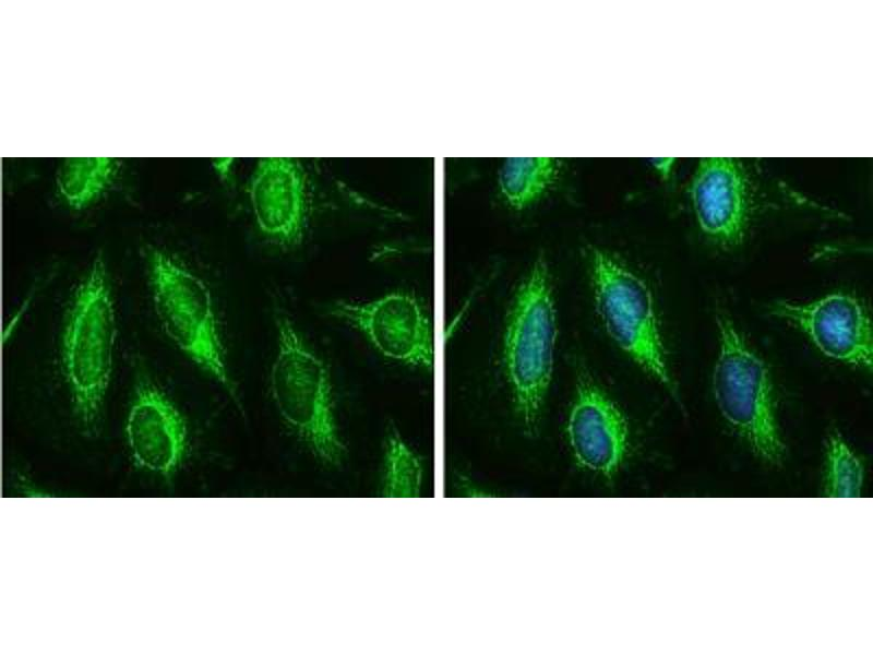Immunofluorescence (Cultured Cells) (IF (cc)) image for anti-Hexokinase 2 (HK2) (Center) antibody (ABIN4317176)