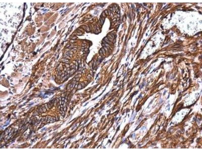 Immunohistochemistry (Paraffin-embedded Sections) (IHC (p)) image for anti-Non-Muscle Myosin Heavy Polypeptide 9 (MYH9) (N-Term) antibody (ABIN441725)