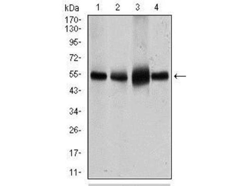 Western Blotting (WB) image for anti-Solute Carrier Family 2 (Facilitated Glucose Transporter), Member 4 (SLC2A4) antibody (ABIN4314635)
