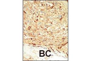Image no. 3 for anti-Macrophage Stimulating 1 (Hepatocyte Growth Factor-Like) (MST1) (AA 385-415), (C-Term) antibody (ABIN392427)