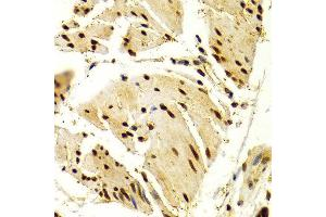 Immunohistochemistry (IHC) image for anti-Nuclear Factor of Activated T-Cells, Cytoplasmic, Calcineurin-Dependent 1 (NFATC1) antibody (ABIN1873889)
