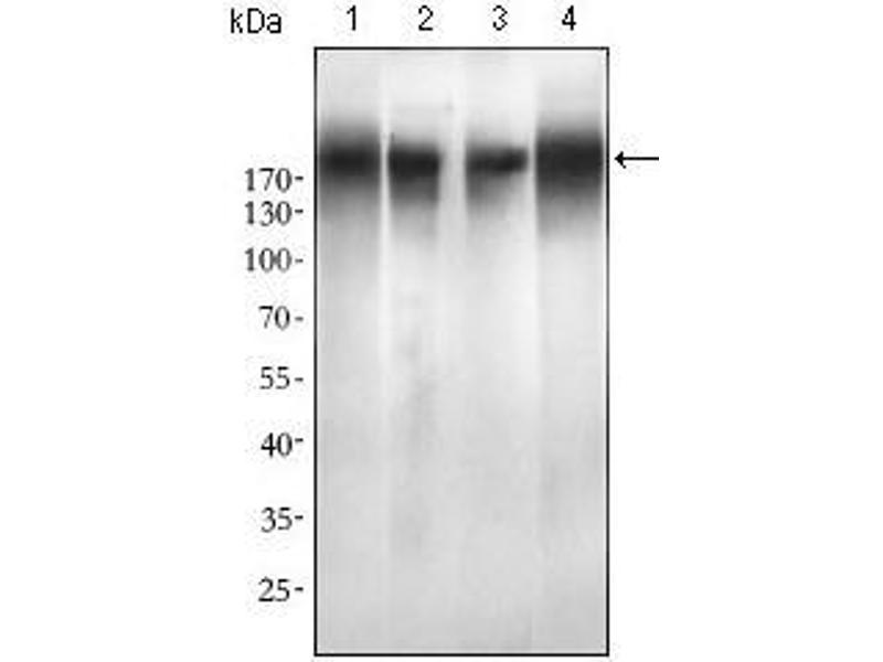 Western Blotting (WB) image for anti-Epidermal Growth Factor Receptor (EGFR) (AA 693-893), (Mutant) antibody (ABIN1724825)
