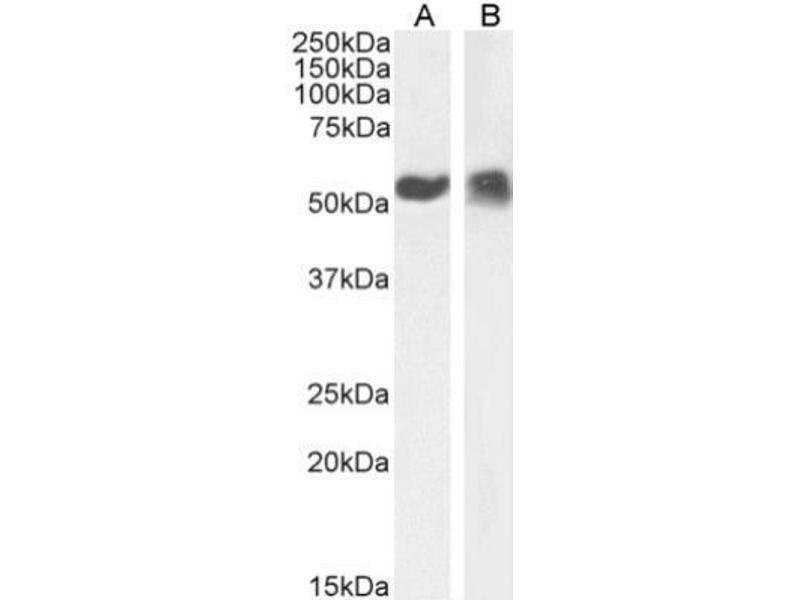 Western Blotting (WB) image for anti-Tumor Protein P53 (TP53) (AA 371-380), (C-Term) antibody (ABIN5681487)