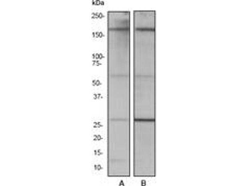 Western Blotting (WB) image for anti-ROCK1 antibody (rho-Associated, Coiled-Coil Containing Protein Kinase 1) (C-Term) (ABIN258448)