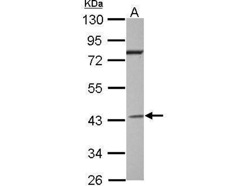 Western Blotting (WB) image for anti-Guanine Nucleotide Binding Protein (G Protein), alpha Inhibiting Activity Polypeptide 2 (GNAI2) (Center) antibody (ABIN2855168)