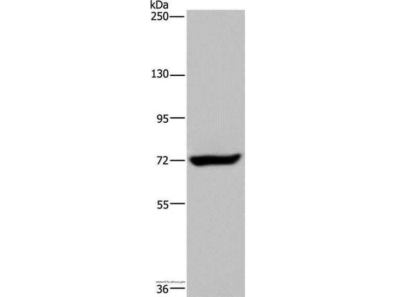 Western Blotting (WB) image for anti-Zinc Finger CCCH-Type Containing 12A (ZC3H12A) antibody (ABIN2430425)