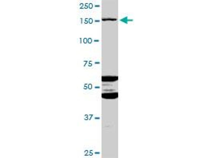 Image no. 2 for anti-ATP-Binding Cassette, Sub-Family C (CFTR/MRP), Member 11 (ABCC11) (AA 1-553) antibody (ABIN529875)