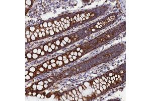 Immunohistochemistry (Paraffin-embedded Sections) (IHC (p)) image for anti-Solute Carrier Family 39 (Zinc Transporter), Member 3 (SLC39A3) antibody (ABIN4354367)