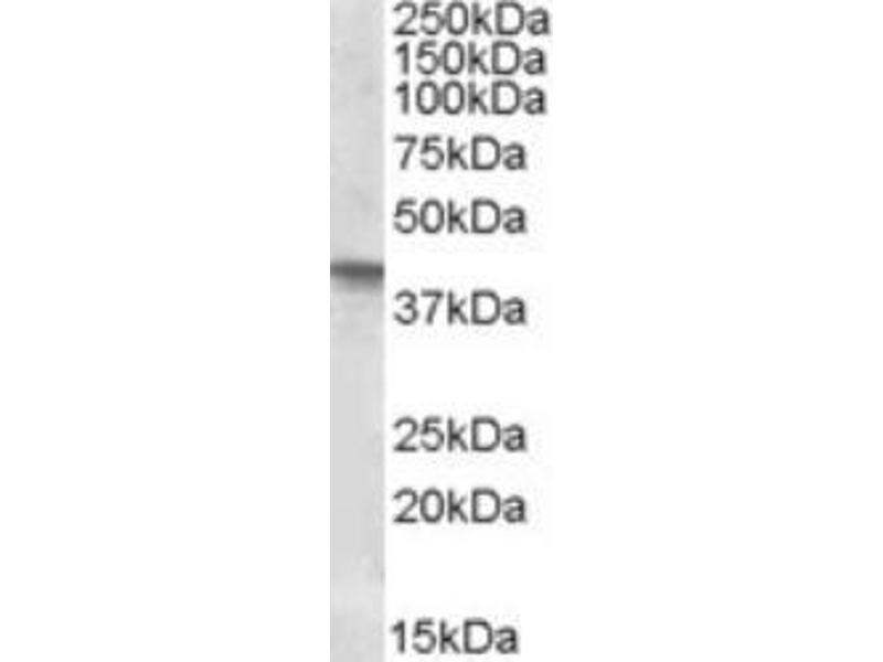 Western Blotting (WB) image for anti-SFRP4 antibody (Secreted Frizzled-Related Protein 4) (ABIN451820)