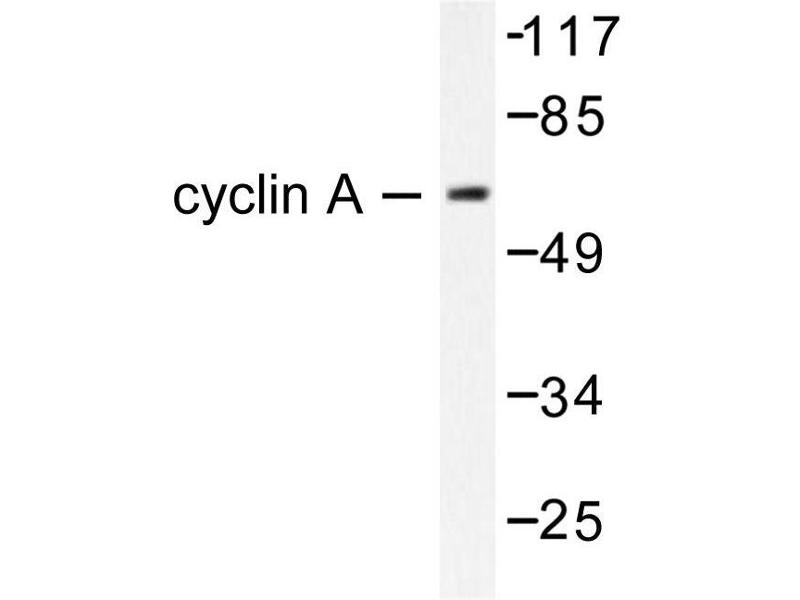 image for anti-Cyclin A antibody (Cyclin A2) (ABIN265377)