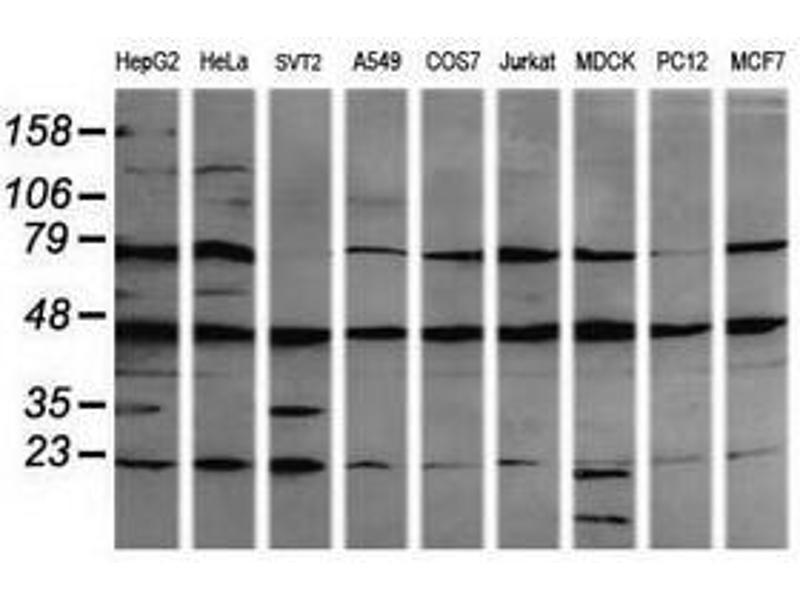 image for anti-Mitogen-Activated Protein Kinase Kinase 1 (MAP2K1) antibody (ABIN1499374)