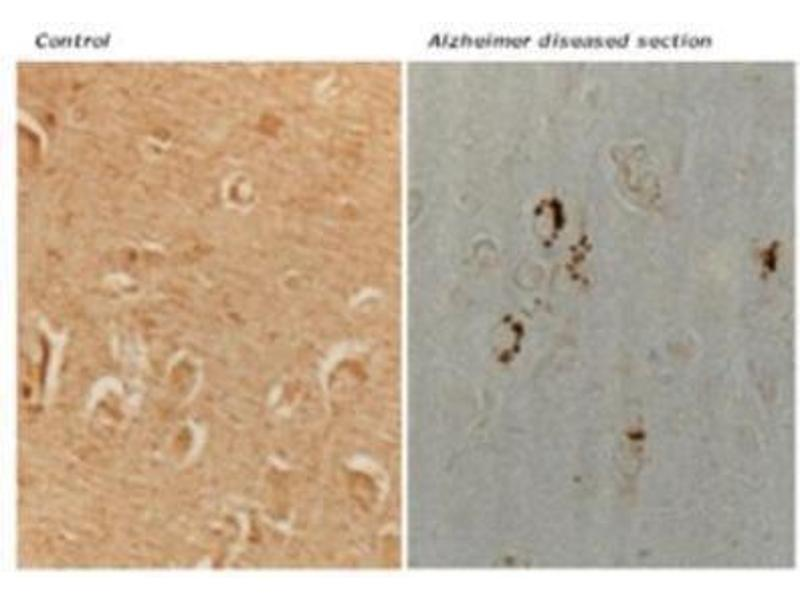 Immunohistochemistry (IHC) image for anti-MAP2K6 antibody (Mitogen-Activated Protein Kinase Kinase 6) (ABIN446647)