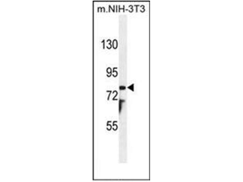 Image no. 2 for anti-Patched Domain Containing 1 (PTCHD1) (AA 618-647), (Middle Region) antibody (ABIN954363)