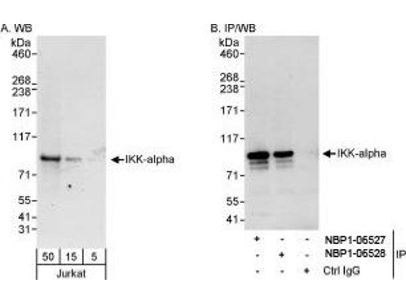 Western Blotting (WB) image for anti-conserved Helix-Loop-Helix Ubiquitous Kinase (CHUK) (AA 350-400) antibody (ABIN438473)