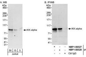 Western Blotting (WB) image for anti-CHUK antibody (conserved Helix-Loop-Helix Ubiquitous Kinase) (AA 350-400) (ABIN438473)