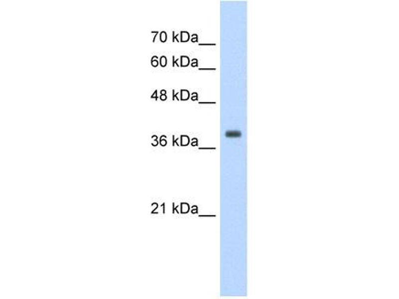 Western Blotting (WB) image for anti-Tropomyosin 1 (Alpha) (TPM1) (N-Term) antibody (ABIN2776783)