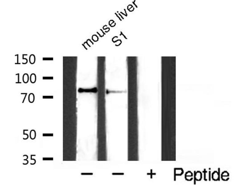 Western Blotting (WB) image for anti-conserved Helix-Loop-Helix Ubiquitous Kinase (CHUK) (pSer176), (pSer177) antibody (ABIN6256173)