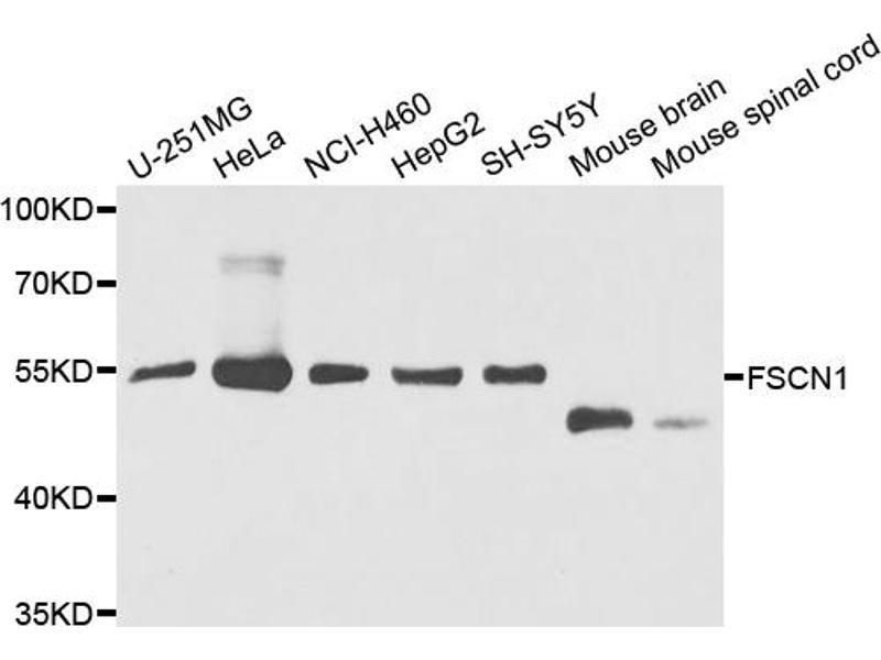 Image no. 1 for anti-Fascin Homolog 1, Actin-Bundling Protein (Strongylocentrotus Purpuratus) (FSCN1) antibody (ABIN6568972)