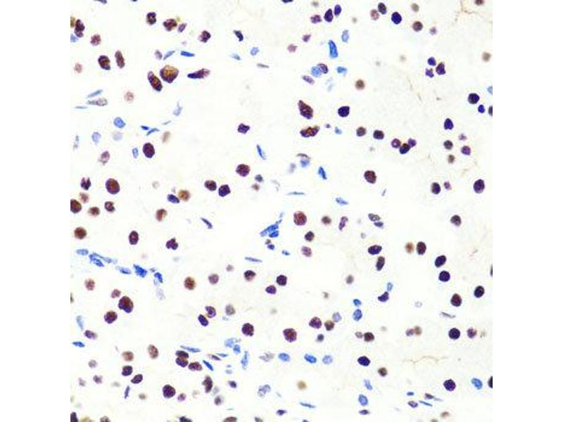 Immunohistochemistry (IHC) image for anti-Suppressor of Cytokine Signaling 1 (SOCS1) antibody (ABIN2737570)