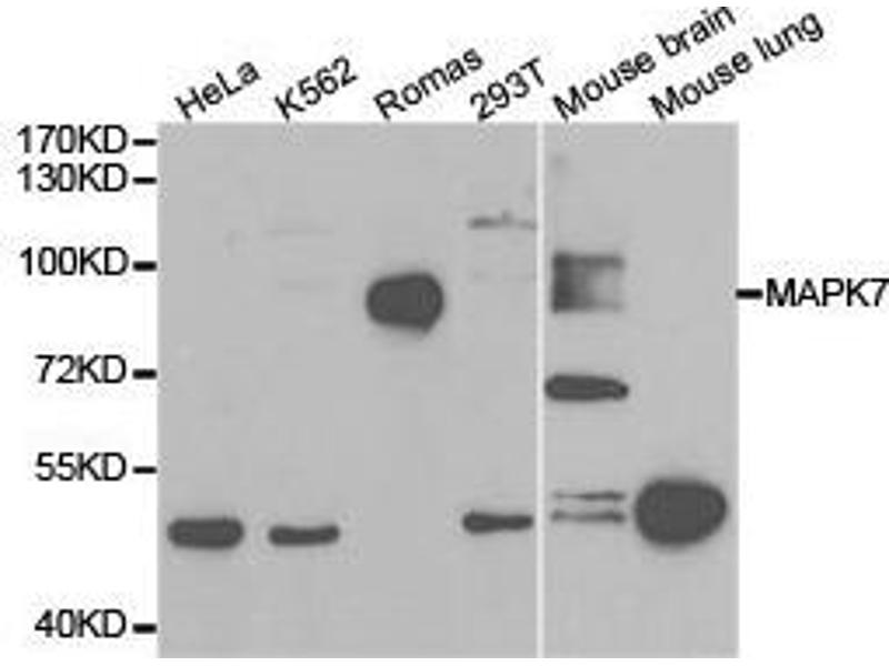 Western Blotting (WB) image for anti-Mitogen-Activated Protein Kinase 7 (MAPK7) antibody (ABIN1873629)