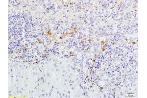 Immunohistochemistry (Paraffin-embedded Sections) (IHC (p)) image for anti-Caspase 3, Apoptosis-Related Cysteine Peptidase (CASP3) (AA 60-100) antibody (ABIN724625)