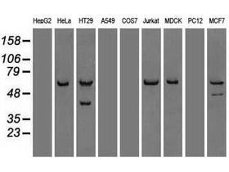 image for anti-Checkpoint Kinase 2 (CHEK2) antibody (ABIN1497497)
