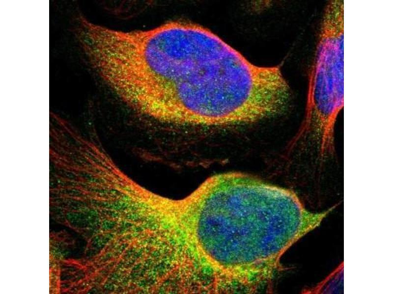 Immunofluorescence (IF) image for anti-TYK2 antibody (Tyrosine Kinase 2) (ABIN4363628)