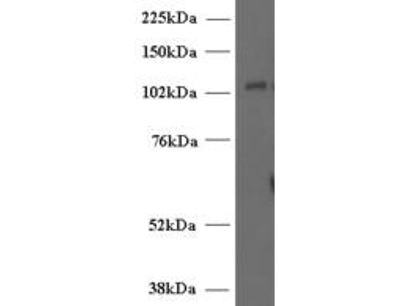 image for anti-Unc-13 Homolog D (C. Elegans) (UNC13D) (Internal Region) antibody (ABIN185677)