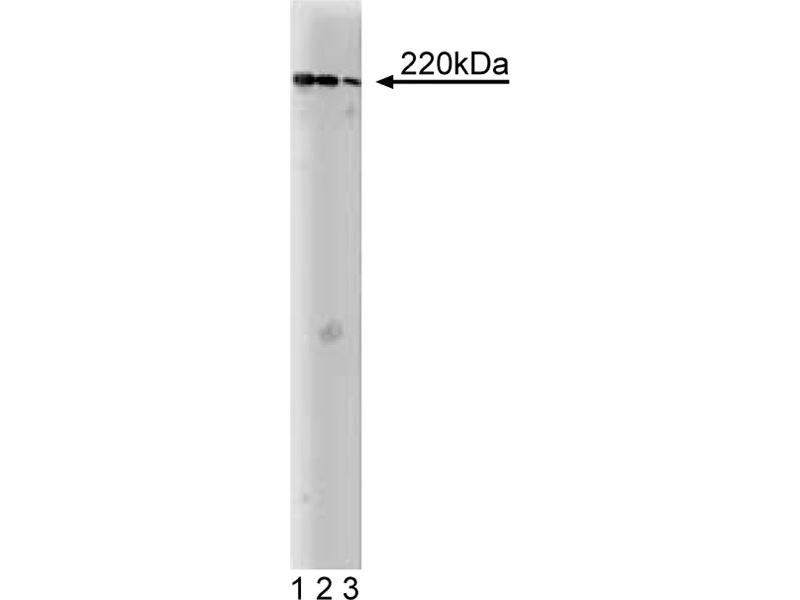 Western Blotting (WB) image for anti-AKAP11 antibody (A Kinase (PRKA) Anchor Protein 11) (AA 11-173) (ABIN968126)