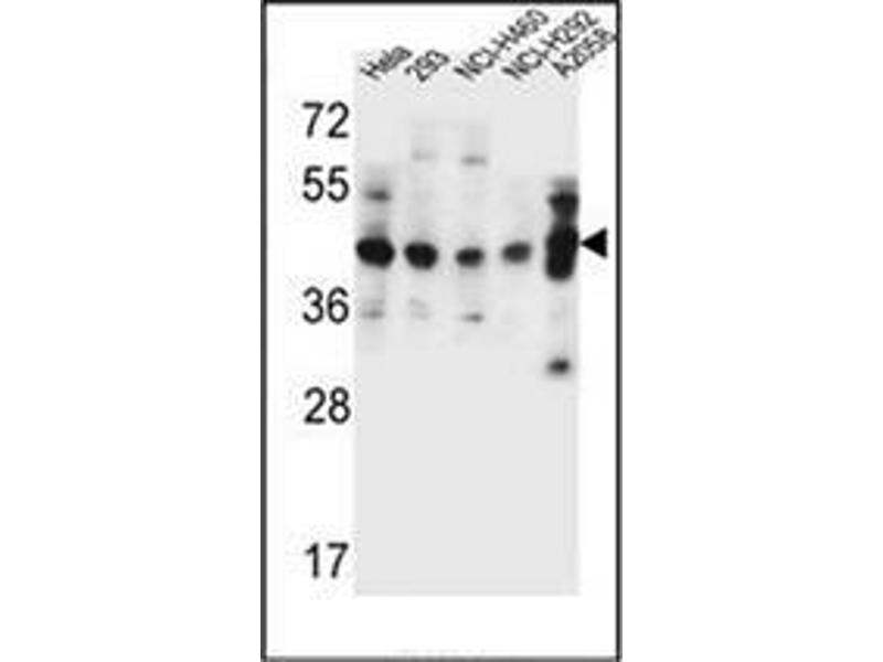 Western Blotting (WB) image for anti-General Transcription Factor IIH, Polypeptide 2C (GTF2H2C) (AA 321-351), (C-Term) antibody (ABIN952647)