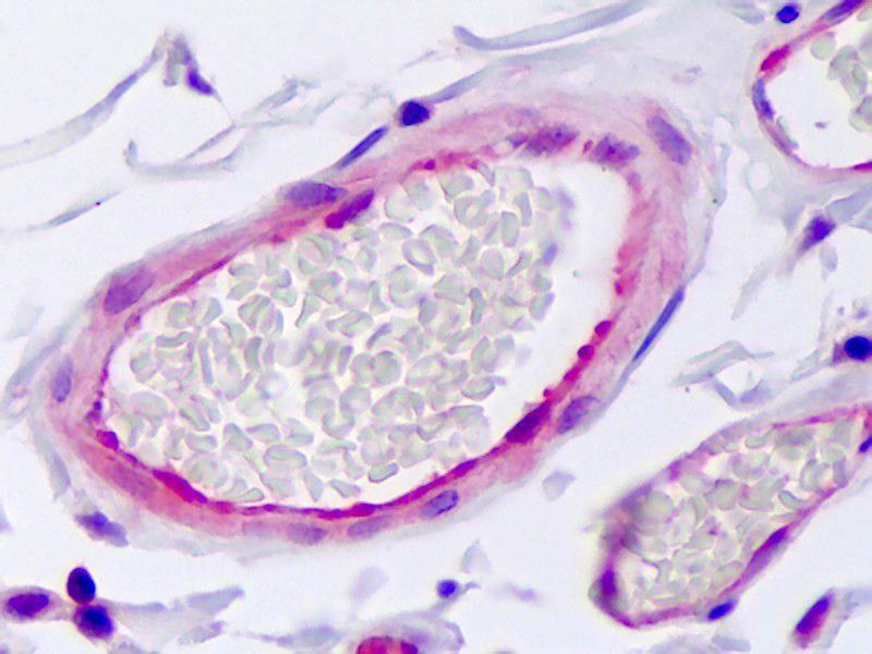 Immunohistochemistry (IHC) image for anti-serpin Peptidase Inhibitor, Clade E (Nexin, Plasminogen Activator Inhibitor Type 1), Member 1 (SERPINE1) antibody (ABIN1104210)