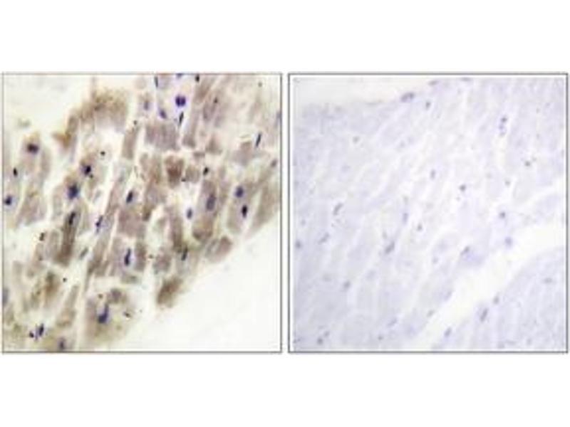 Immunohistochemistry (IHC) image for anti-Mitogen-Activated Protein Kinase-Activated Protein Kinase 2 (MAPKAPK2) (AA 188-237), (pThr222) antibody (ABIN1531440)
