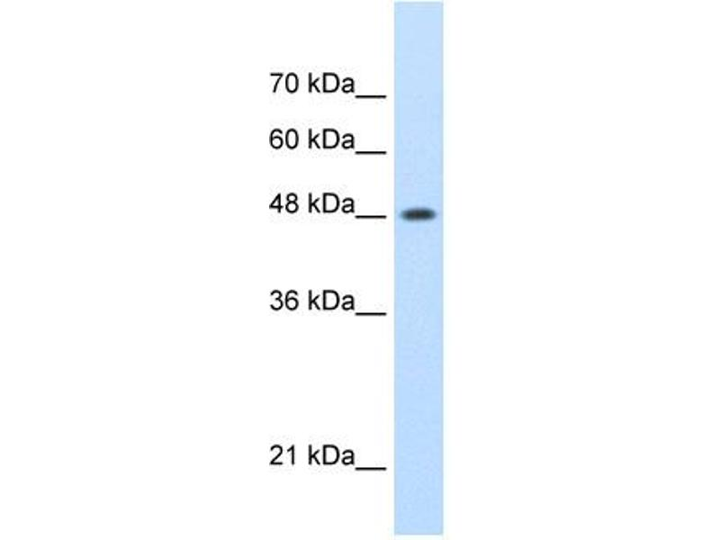 Western Blotting (WB) image for anti-SWI/SNF Related, Matrix Associated, Actin Dependent Regulator of Chromatin, Subfamily E, Member 1 (SMARCE1) (N-Term) antibody (ABIN2780465)