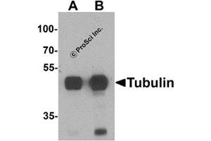 Western Blotting (WB) image for anti-TUBA3C antibody (Tubulin, Alpha, 3C) (N-Term) (ABIN1077421)